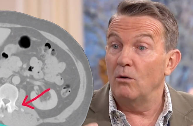 Bradley Walsh has broken his back in three places after falling from a bull