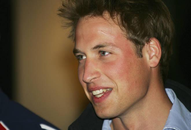 Prince William scar
