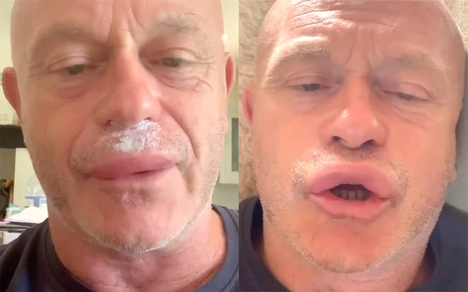 Ross Kemp stung by wasps on his lips leaving actor in hospital
