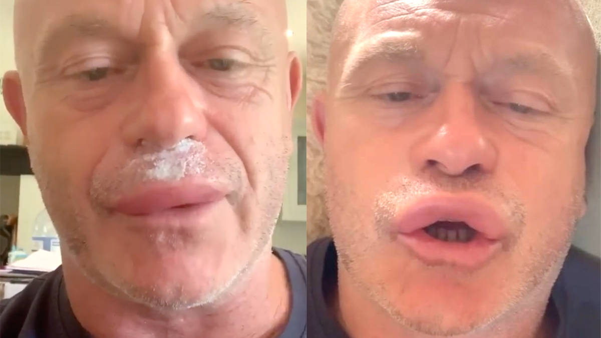 Ross Kemp looks unrecognisable after being stung by wasps on his lips, leaving actor in hospital